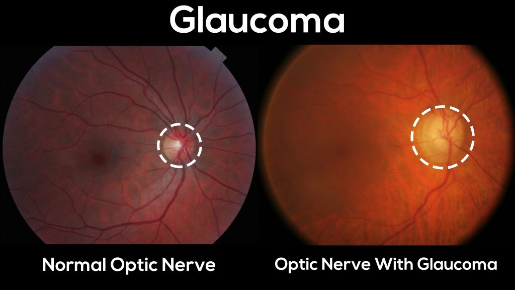 Here is a normal optic nerve vs and optic nerve with glaucoma.