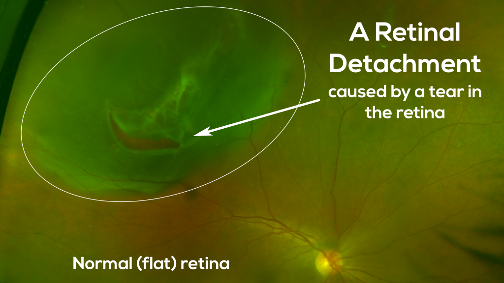 Example of a retinal tear leading to a retinal detachment.