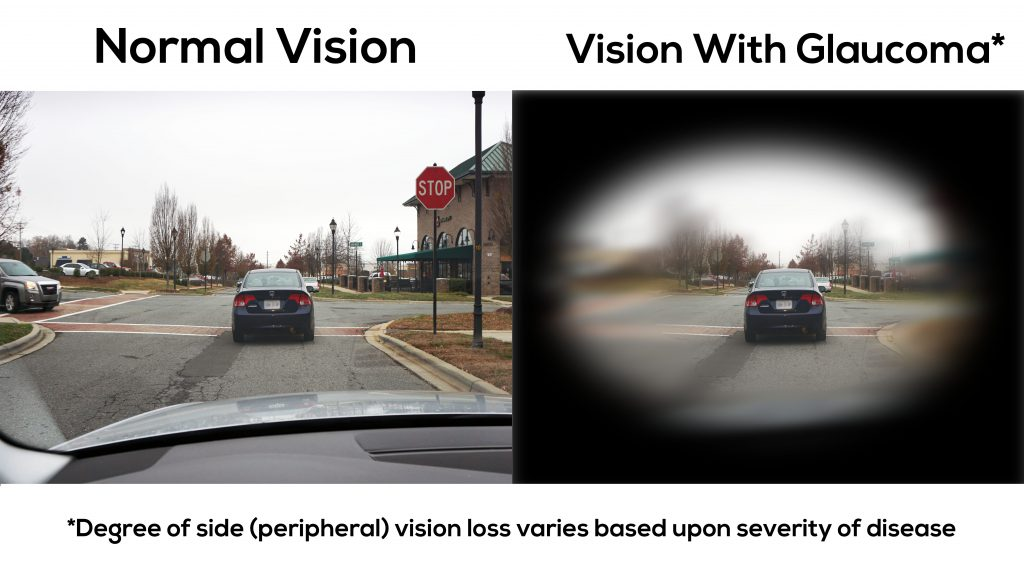 Here is what vision looks like with glaucoma