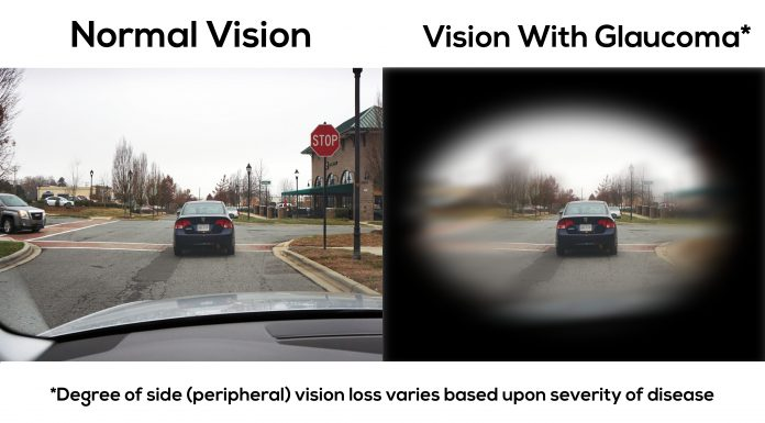 This is what vision with glaucoma looks like.