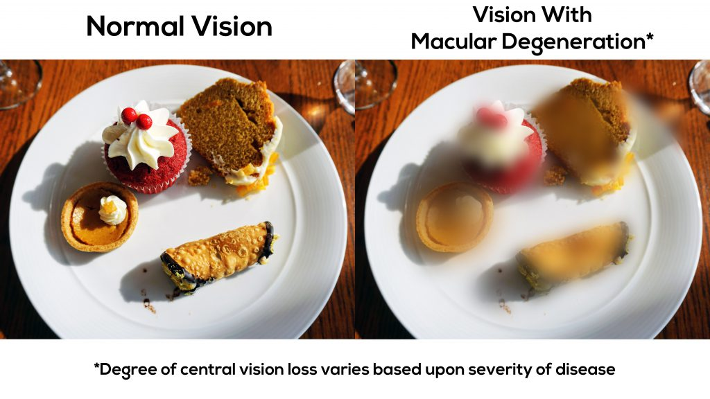 This is vision with macular degeneration
