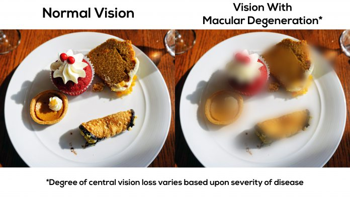 This is what vision with macular degeneration looks like.