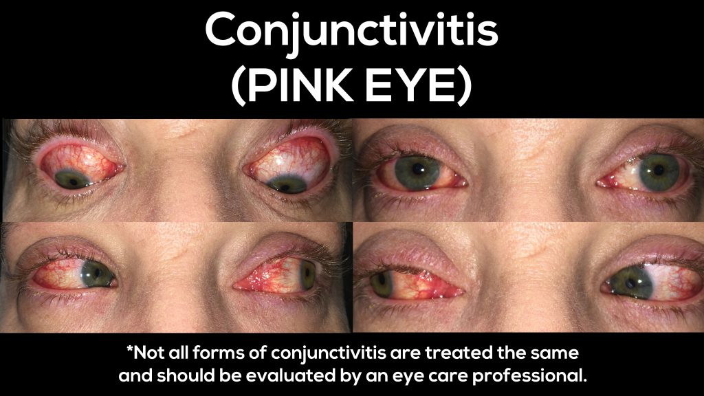 This is what pink eye (conjunctivitis) looks like.