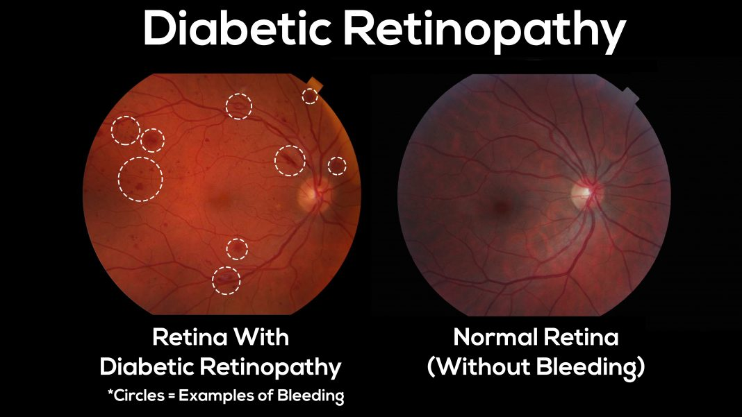 diabetic retinopathy Diabetic retinopathy (pronounced ret in op uh thee) is a complication of diabetes that causes damage to the blood vessels of the retina— the light-sensitive tissue that lines the back part of the eye, allowing you to see fine detail.