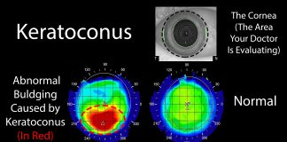 Keratoconus is an uncommon eye disease where the front of your eye, known as the cornea, begins to thin and lose it's normally round shape.
