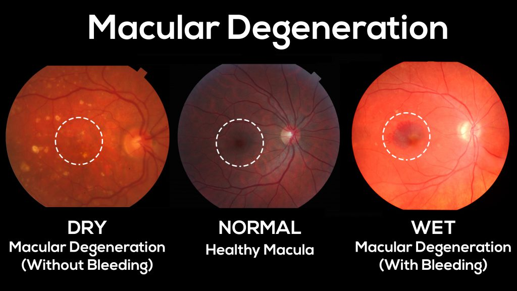 This is what both wet (exudative) and dry (non-exudative) macular degeneration look like.