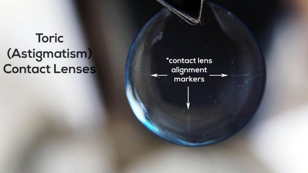 Here is an example of toric alignment markers on soft contact lenses for astigmatism