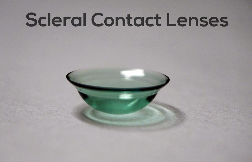 Scleral contact lenses for astigmatism are commonly used for people who have high amounts of astigmatism due to corneal disease