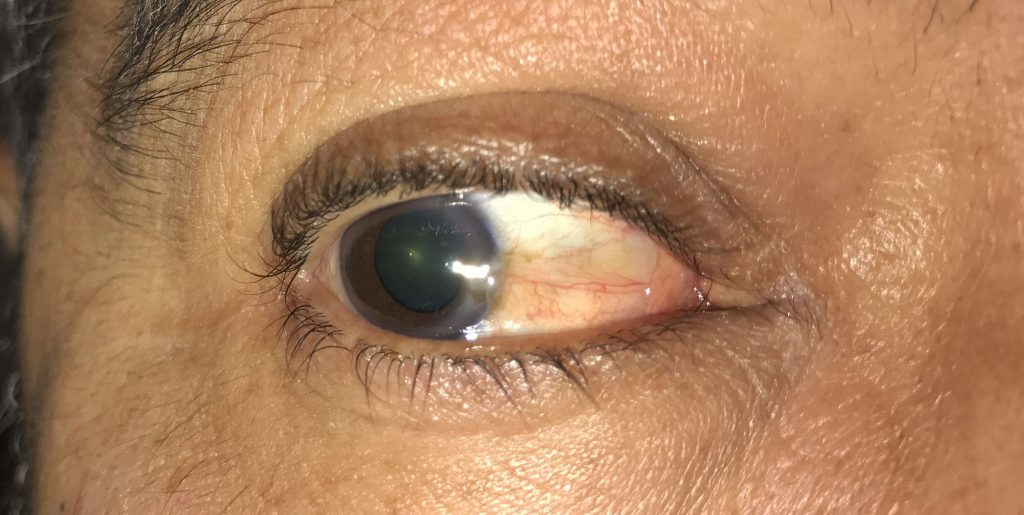 This is what a pterygium looks like.