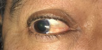 Here is what a pterygium looks like from the side.