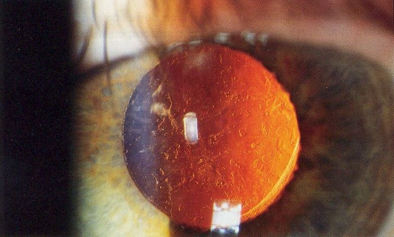 Posterior capsule opacification (i.e. a secondary cataract)