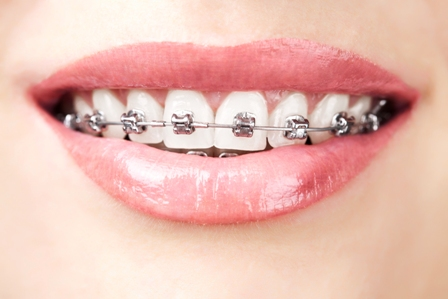 Example of damon braces