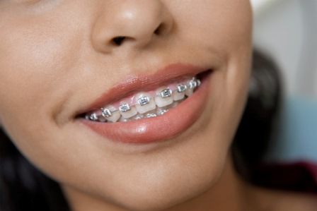 Example of traditional braces
