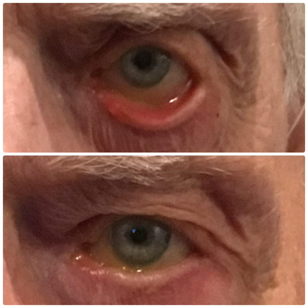 Ectropion before and after
