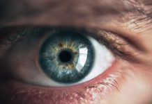 Recurrent Corneal Erosion (RCE): Causes and Treatment Options
