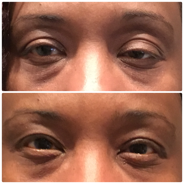 Eyelid ptosis before and after surgery